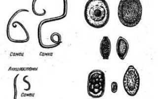 Могут ли глисты вызывать кашель: лечение паразитарной инвазии