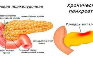 Связь панкреатита и сахарного диабета