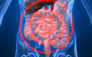 Повышенное газообразование в кишечнике — симптомы и как избавиться