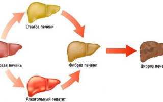 Синдром цитолиза печени