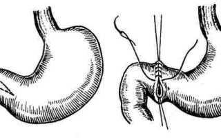 Резекция желудка по Ру: когда и как проводится, реабилитация и прогноз