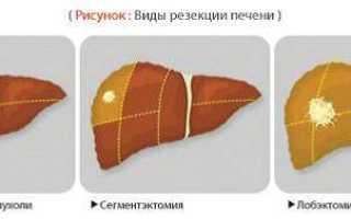 Атипичная резекция печени лапароскопическим доступом