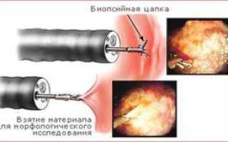 Дисплазия желудка: степени развития, признаки и проявления, как лечить