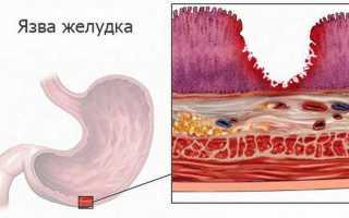 Некроз кишечника: классификация, симптомы, методы лечения и прогноз