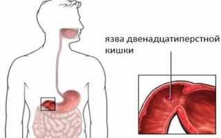 Признаки воспаления двенадцатиперстной кишки, лечение, диета