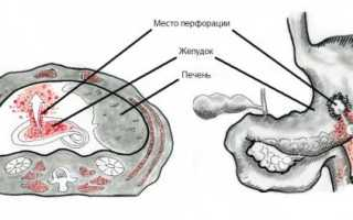 Перфорация желудка: причины, характерные симптомы, как лечится