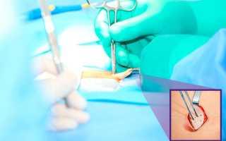 Как проходит операция по удалению пупочной грыжи у взрослых