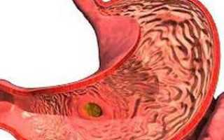 Тяжесть и боль в желудке
