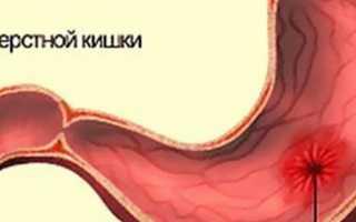 Причины появления тошноты при язве желудка и способы ее устранения
