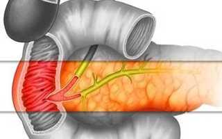 Большой дуоденальный (фатеров) сосочек: расположение, функции и заболевания структуры