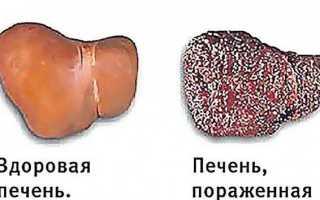 Анализы при заболеваниях печени: методы диагностики, биохимические показатели, расшифровка результатов