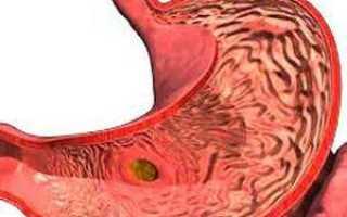 Что делать, если болит живот и желудок?