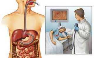 Как подготовиться к гастроскопии желудка: диета, лекарства и анализы перед обследованием
