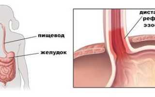 Хронический дистальный эзофагит: как проявляется, и чем его нужно лечить