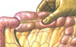 Гангрена кишечника: симптомы, лечение (хирургия) и прогноз для жизни