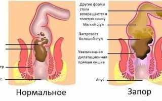 Приёмы самомассажа и ЛФК упражнения при запорах у пожилых людей