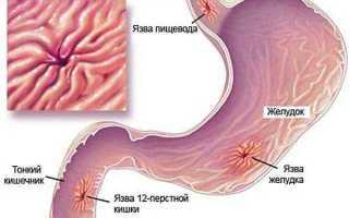 Обострение язвы желудка — причины, симптомы и лечение