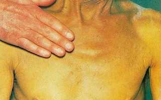 Можно ли вылечить рак поджелудочной железы? Его первые симптомы и причины развития