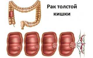 Что такое аденокарцинома толстой кишки и сколько проживет человек с этим заболеванием