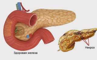 Острый некроз поджелудочной железы. Симптомы, лечение