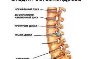 Боли в животе от остеохондроза. Причины. Лечение. Профилактика