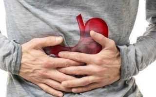 Как защитить желудок при приеме нестероидных препаратов: лучшие средства, отзывы