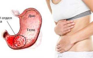 Язва антрального отдела желудка: как развивается, симптомы и лечение