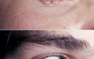 Амилоидоз кожи – заболевание, связанное с нарушениями метаболизма