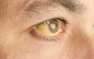 Такое опасное заболевание как механическая желтуха лечению поддается!