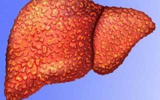 Диффузные изменения печени: симптомы и что делать