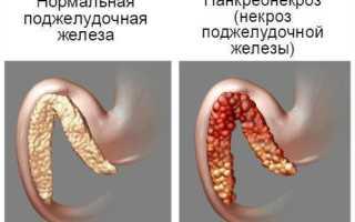 Последствия, прогноз здоровья и жизни после операции на поджелудочной железе