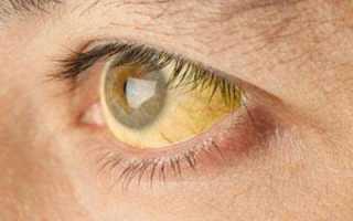 Первичный склерозирующий холангит: симптомы, диагностика и лечение