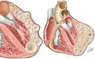 Эхинококк в печени, легких, сердце, головном мозге, почках, мышцах и костях