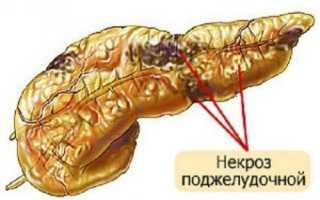 Как снять спазм поджелудочной железы и панкреатическую колику?