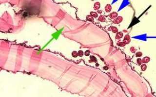 Эхинококковая киста печени: симптомы и лечение эхиноккокоза