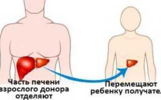 Сколько живут после трансплантации печени при циррозе?