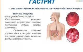 Как лечить синдром раздраженного кишечника (СРК): диета, препараты, альтернативные подходы