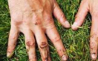 Эффективные профилактические меры предотвращения заражения лямблиями