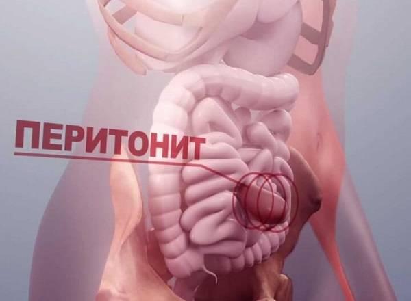 Ostryj-peritonit.jpg