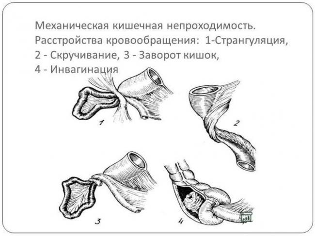 prichiny-nekroza-2.jpg