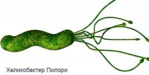 helicobacter-pylori-300x151.jpg