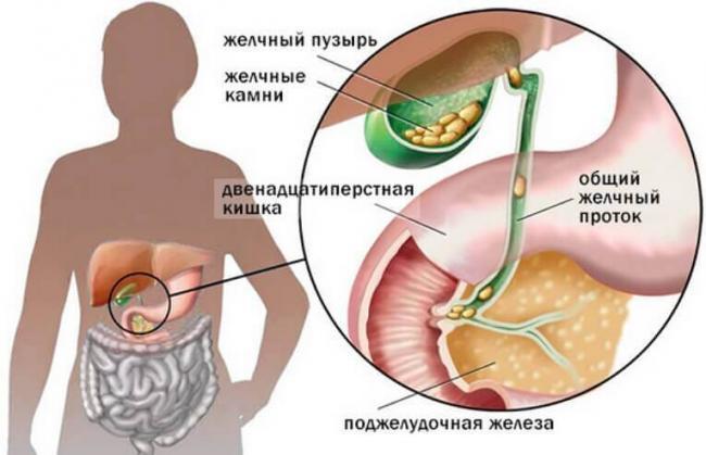 zhelchniy-puzyr-1.jpg