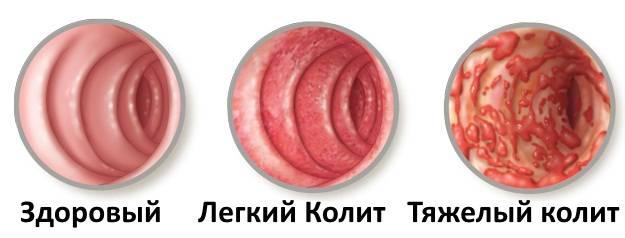 rvota-i-temperatura-u-rebenka-prichiny-i-chto-delat-10.jpg