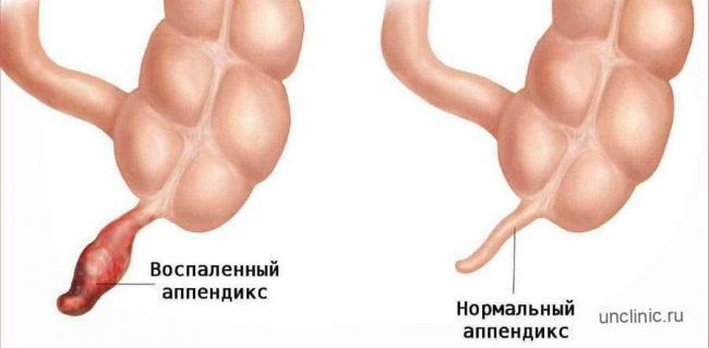 vospalennyj-appendiks-900x442.jpg