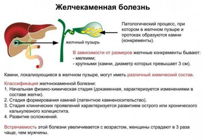 zhelchekamennaya-bolezn.jpg