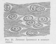 рис. 21 Личинки трихинелл в мышцах свиньи