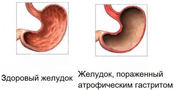 atroficheskiy-gastrit-simptomy-i-lechenie-6.jpg