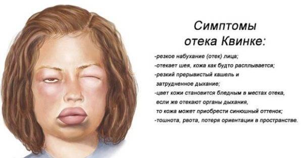 Главные-симптомы-отека-Квинке-600x313.jpg