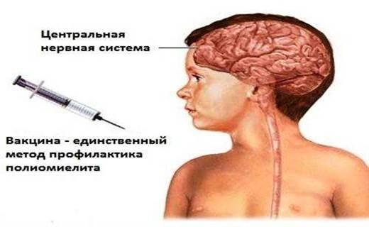 lechenie_poliomielita_u_detei_1.jpg