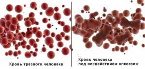krovotechenie-posle-alkogolya-300x142.jpg